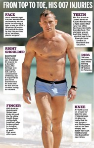 Daniel Craig's 007 injuries according to The Daily Mail